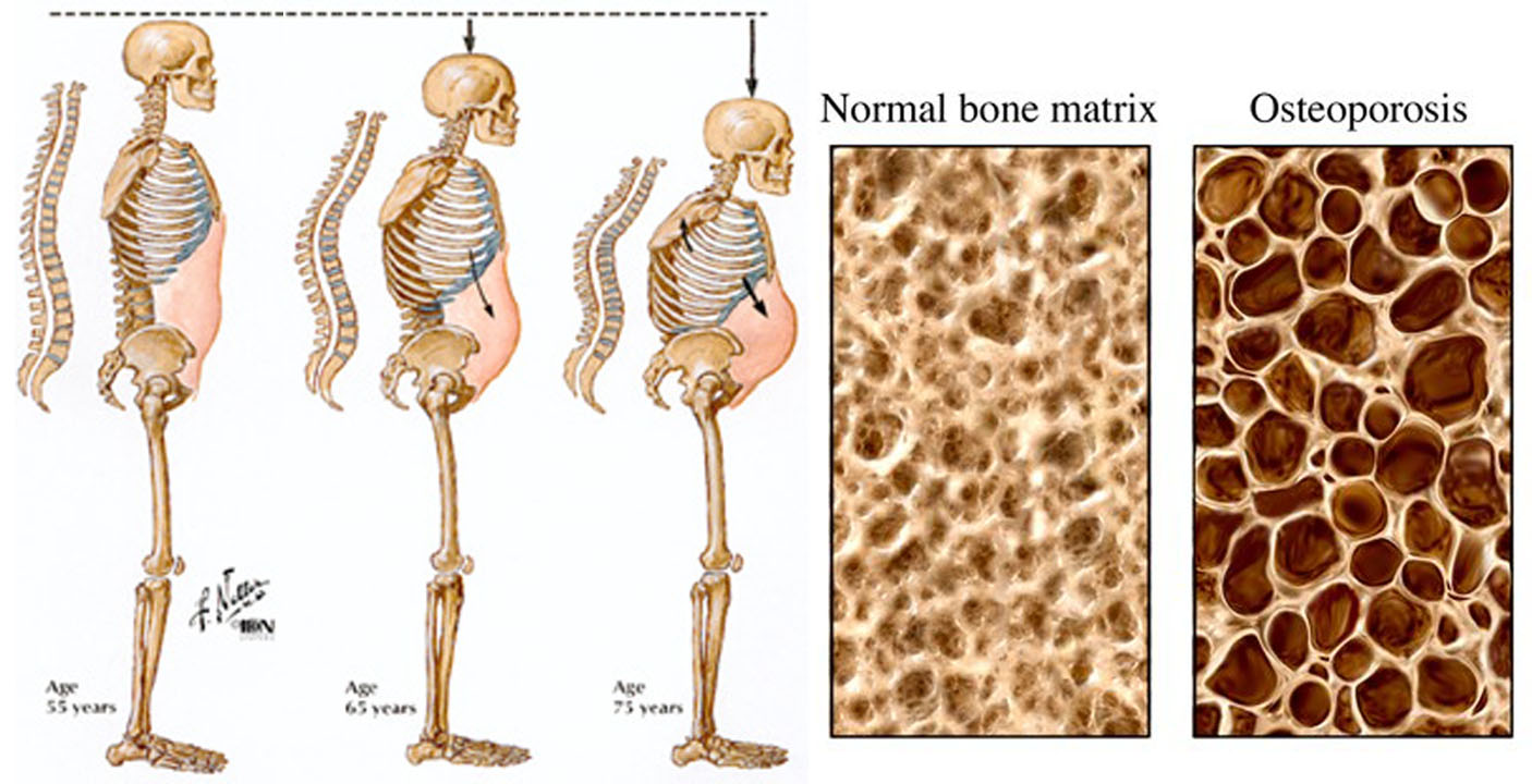 Degeneration And Osteoporosis, Are They The Same?